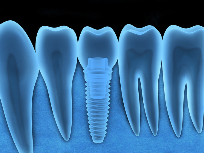 A diagram of Dental Implants in an x-ray in Milwaukie, OR