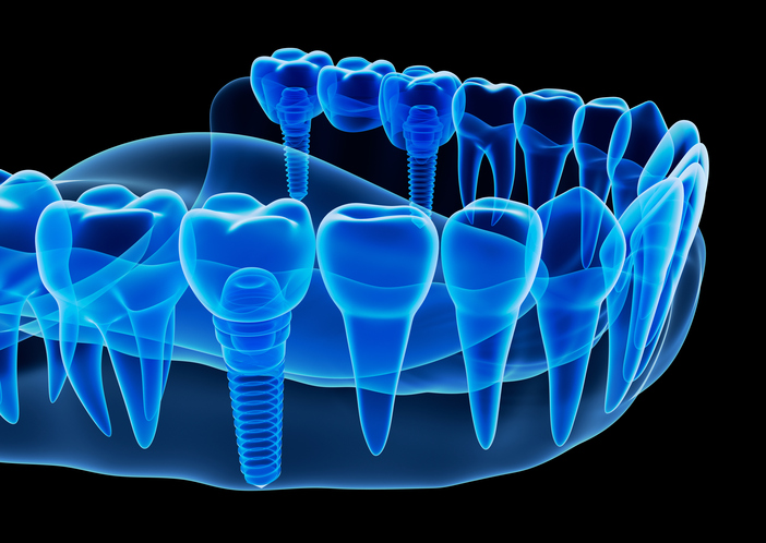 A diagram of Dental Implants in Milwaukie, OR