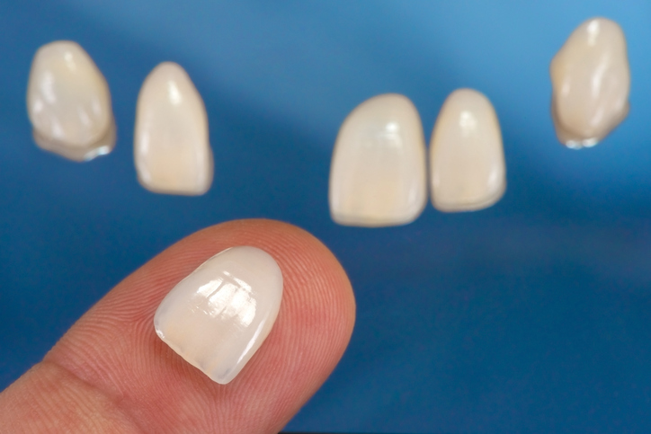 A person holding Teeth Veneers in Milwaukie, Oregon
