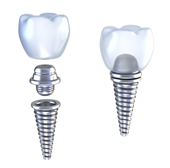 Dental Implants in Milwaukie, OR